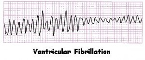 Heart Rythms for Ventricular Fibrillation